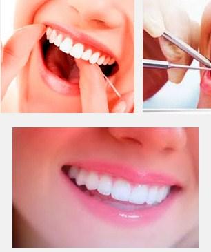 Cara Menghilangkan Karang Gigi Secara Alami Dan Ampuh